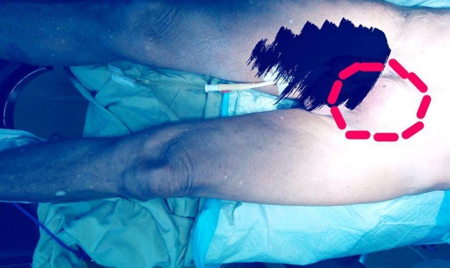 Berapa Sih Biaya Operasi Hernia Itu ditanggung BPJS