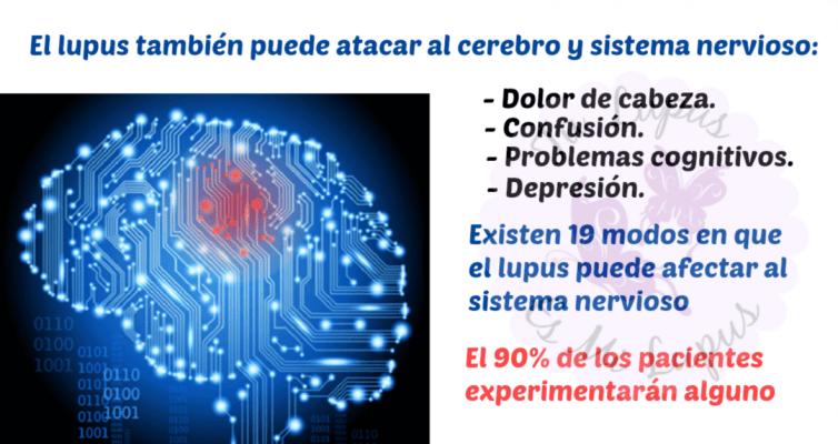 2012.07.18_Cómo el lupus afecta al cerebro
