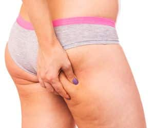 Como Quitar La Celulitis Naturalmente