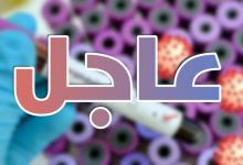 Photo of عاجل/ تسجيل 3 اصابة جديدة بفيروس كورونا في تونس ليصبح العدد الجملي 1071 حالة.. هكذا تتوزع …