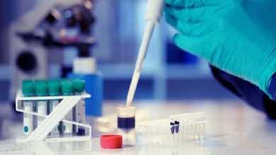 Photo of وزارة الصحّة ستتكفّل بتكاليف إجراء التحليل المخبري RT-PCR بالنسبة للتونسيّين العائدين من الخارج..