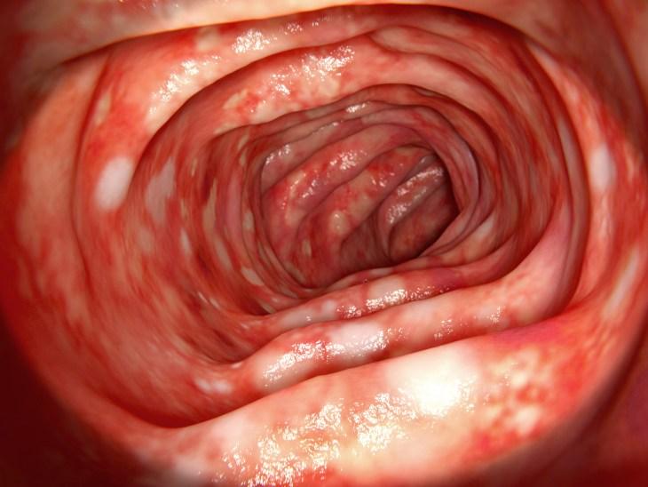 Bildet viser tykktarm rammet av Ulcerøs kolitt