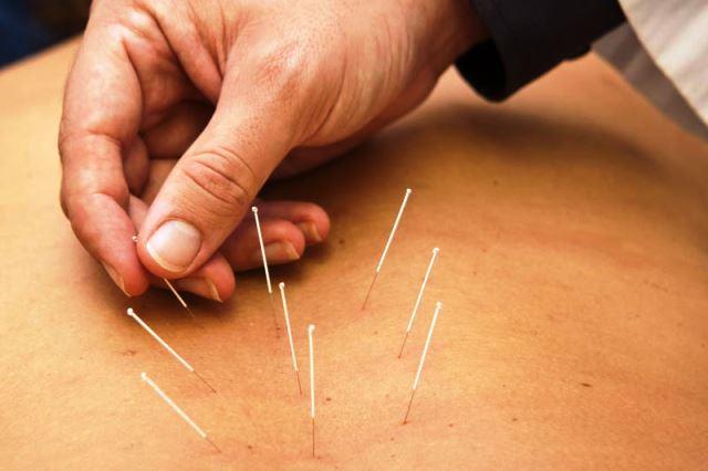 La acupuntura también se está usando en clínicas y hospitales convencionales