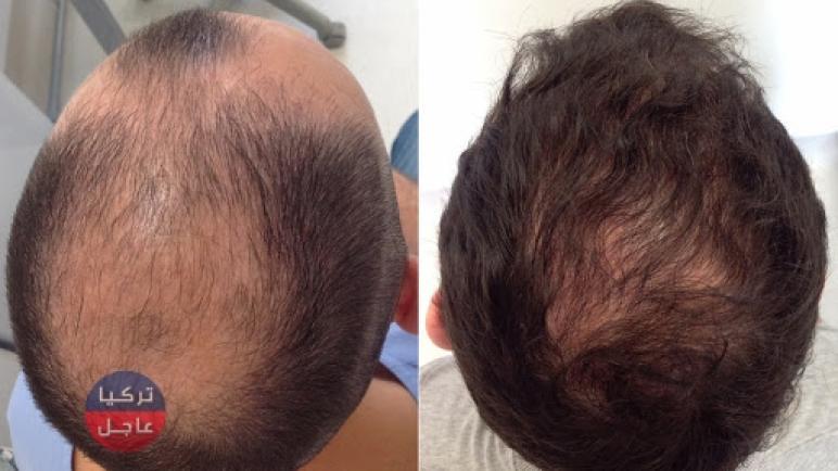 الكشف عن عوامل طبيعية لاعادة انبات الشعر في غضول أشهر