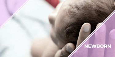 newborn turner syndrome