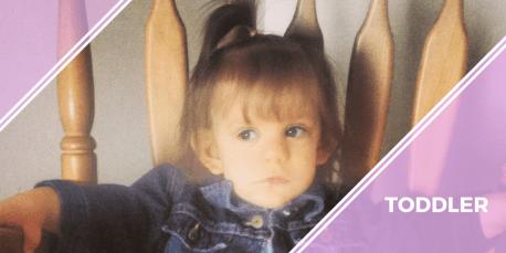 toddler turner syndrome