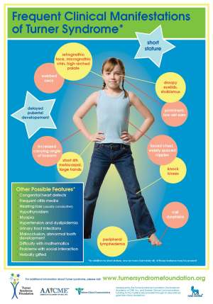 Turner syndrome poster
