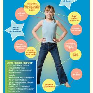 Turner syndrome poster