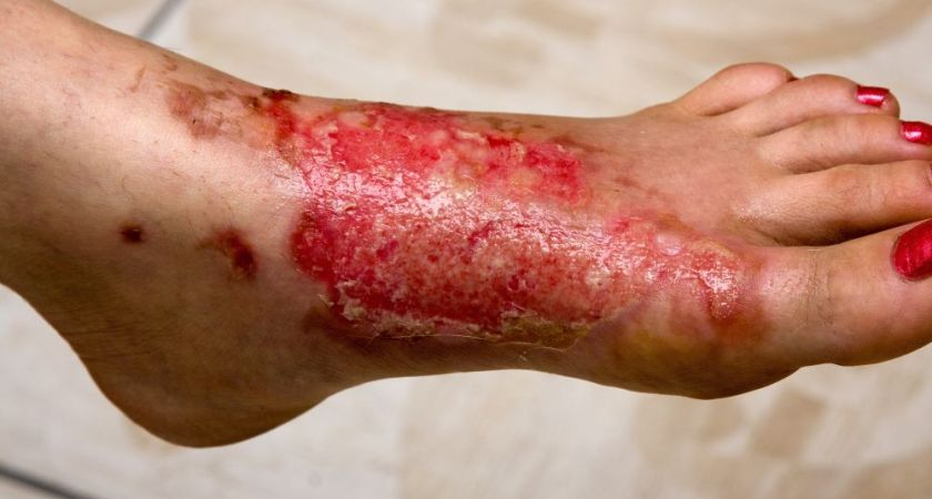 Natural Remedies For Burns In Times Of Emergencies