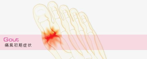 痛風の症状について