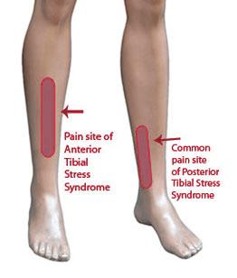 Running Injuries Calf And Shin Pain Tuusa Sports