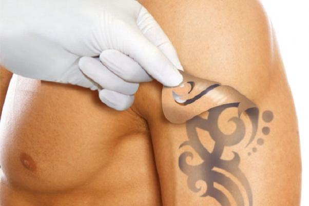 Удаление-татуировок-3