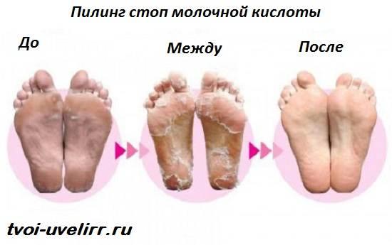 Молочная-кислота-Свойства-и-применение-молочной-кислоты-6