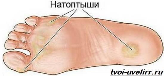 15-способов-применения-перекиси-водорода-13
