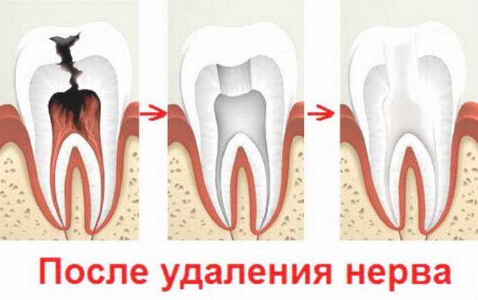 articulații dintr-un dinte rău