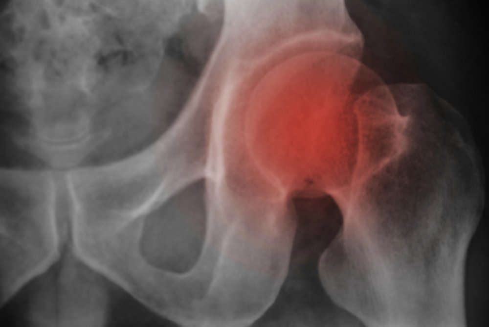 Breast Cancer and Fractures Study Leads to New Bone-Loss Guidelines
