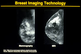 Novel breast tomosynthesis technique reduces screening recall rate