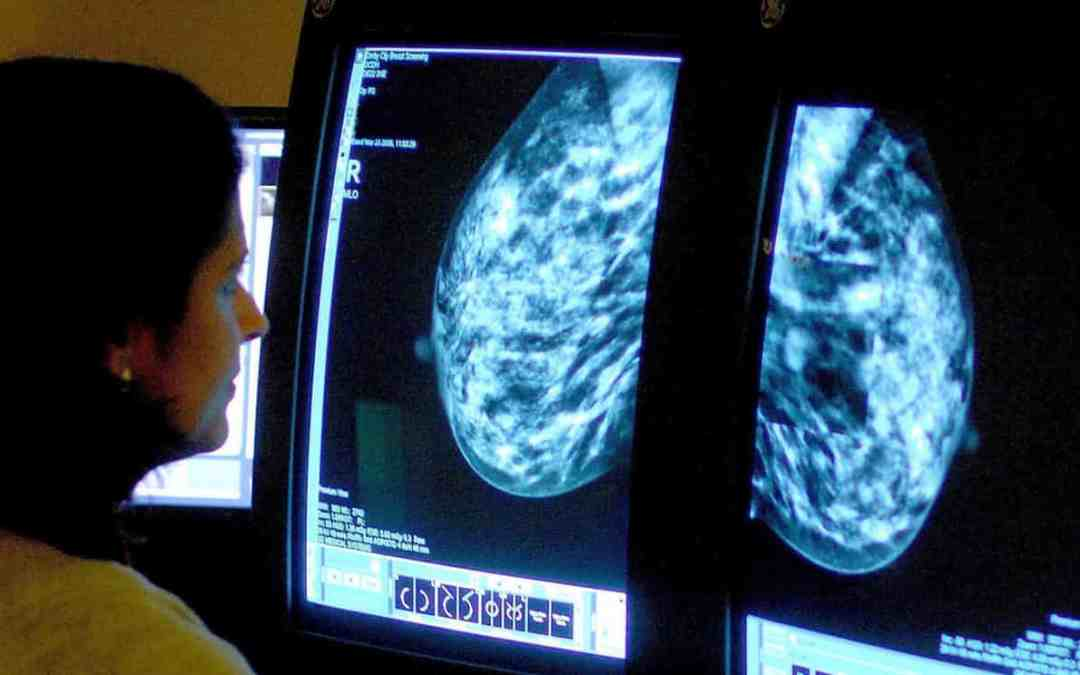 Medicaid restrictions linked to increased late-stage breast cancer diagnoses