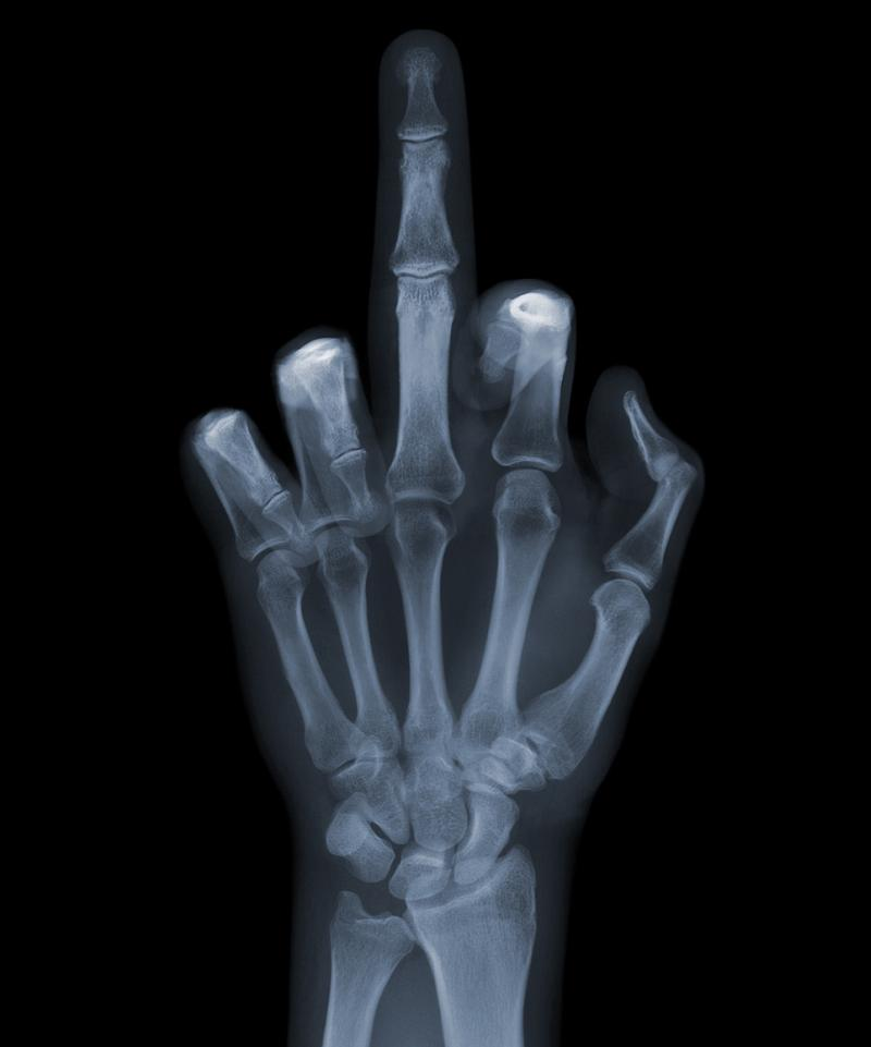 middle-finger-x-ray