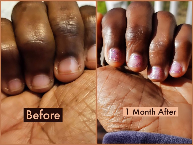 Quit Nail Biting | Nail Growth & Manicure Products