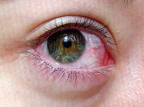Zaczerwienienie oczu – objawy alergii ocz