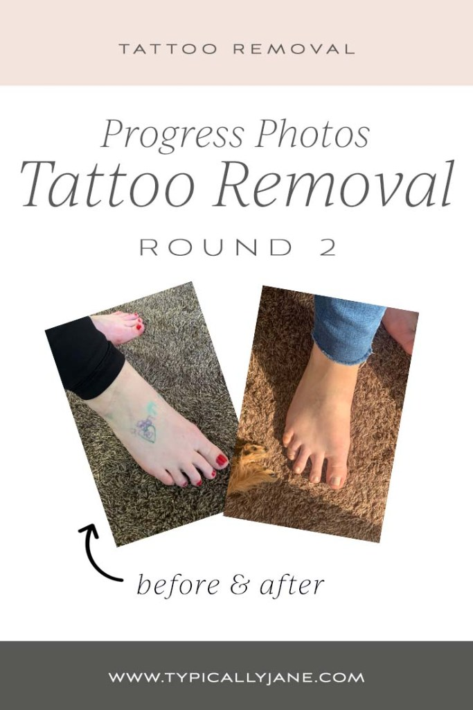 tattoo removal progress before and after review with pictures