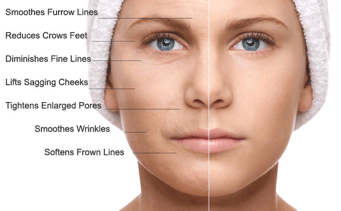 What does microneedling do?