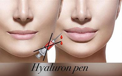 Hyaluron Pen Course at UB Academy London