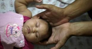 Supremo pode decidir se aborto em casos de microcefalia é legal