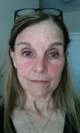 detox mud mask and facial redness