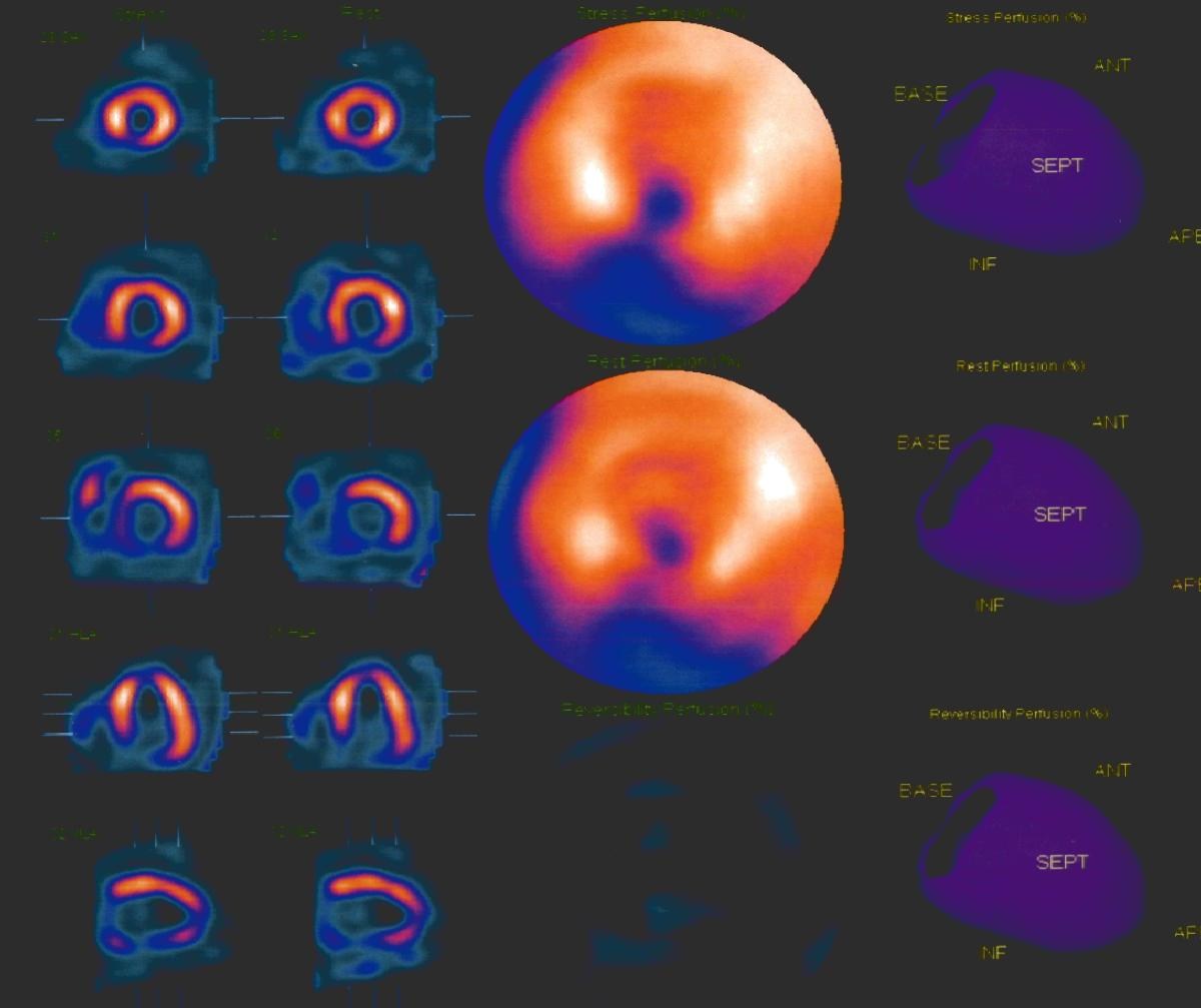 Nuclear Stress Test Images