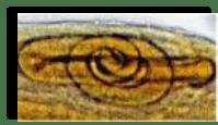 Copyright © 2010 Uçkun Tıp Laboratuvarı Kuruluş: 1981 TRICHINOSISGerek yazılı basında ve gerekse görsel medyada son 1 haftadadır çiğ köfte yenilmesi nedeniyle Izmir'de 50'den fazla insanda (tanısı ve tedavisi biraz güç olan) TRICHINOSIS enfeksiyonunun görüldüğünden söz edilmektedir. Bu nedenle konu hakkında kısa bir bilgiyi siteme almayı uygun buldum.Trichinelliasis'e neden olan Trichinella spiralis, aslında farelerin bir parazitidir. Bununla beraber domuz, ayı, kurt, at, aslan, leopar, kedi, köpek ve bunların pişmemiş etlerini yiyen insan ve hayvanlarda da enfeksiyona neden olan bir parazittir. Insanların ve memeli hayvanların barsak ve dokularını enfekte eder. Tüm dünyada domuz etinin sık yendiği ülkelerde, özellikle Amerika, Avrupa ve Rusya'da sık rastlanan bir helmint (parazit)'tir. Domuz etinin tüketilmediği ülkelerde, Asya ve Afrika'da pek bulunmaz.Trichinella ile enfekte hayvanların pişmemiş veya az pişmiş etleriyle alınan gıdalardaki kistlerin kapsülünü oluşturan sert duvar, mide asitiyle erir ve olgunlaşmamış larva (kurtcuk) ortaya çıkar. Ince barsaklara giden larvaların genital organları oluşur ve 5 gün içinde tamamen olgunlaşırlar.Kapsüllü larva Enfeksiyona neden olan larva