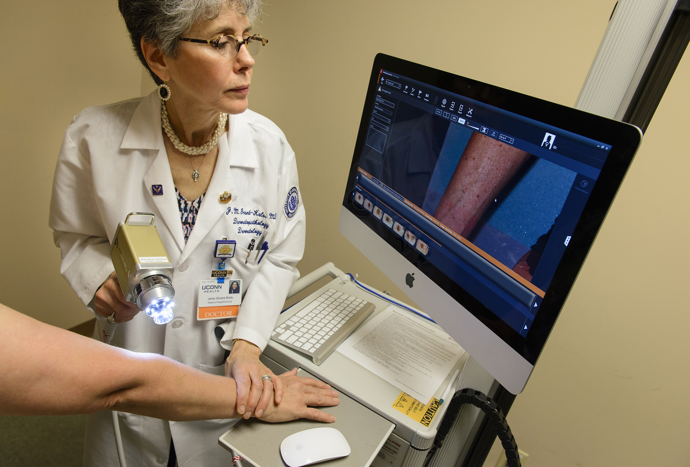 Finding Skin Cancer In A Flash