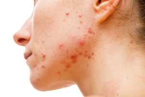 red and inflamed acne on woman's face