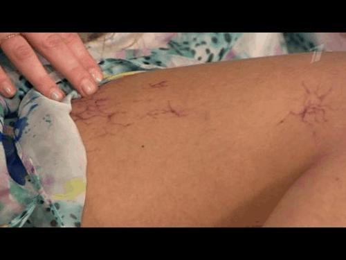 scleroterapia varicoasă reticulară cum de a vindeca picioarele varicoase
