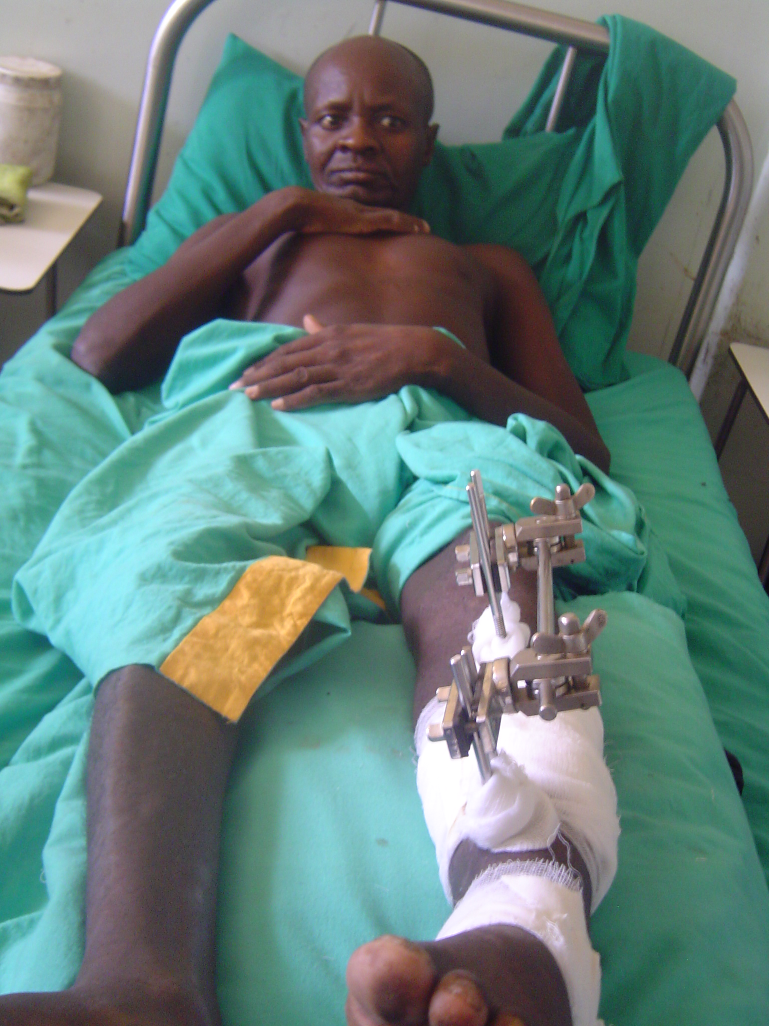A Karimojong man injured during a raids lies on a hospital bed in Moroto.
