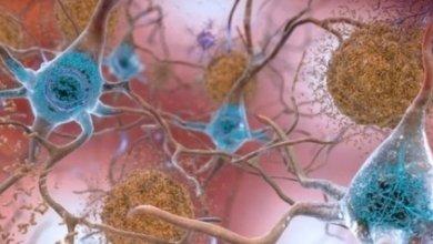 Photo of Ancora una vittoria di Konsumer in materia di Alzheimer, contro una RSA di Nettuno