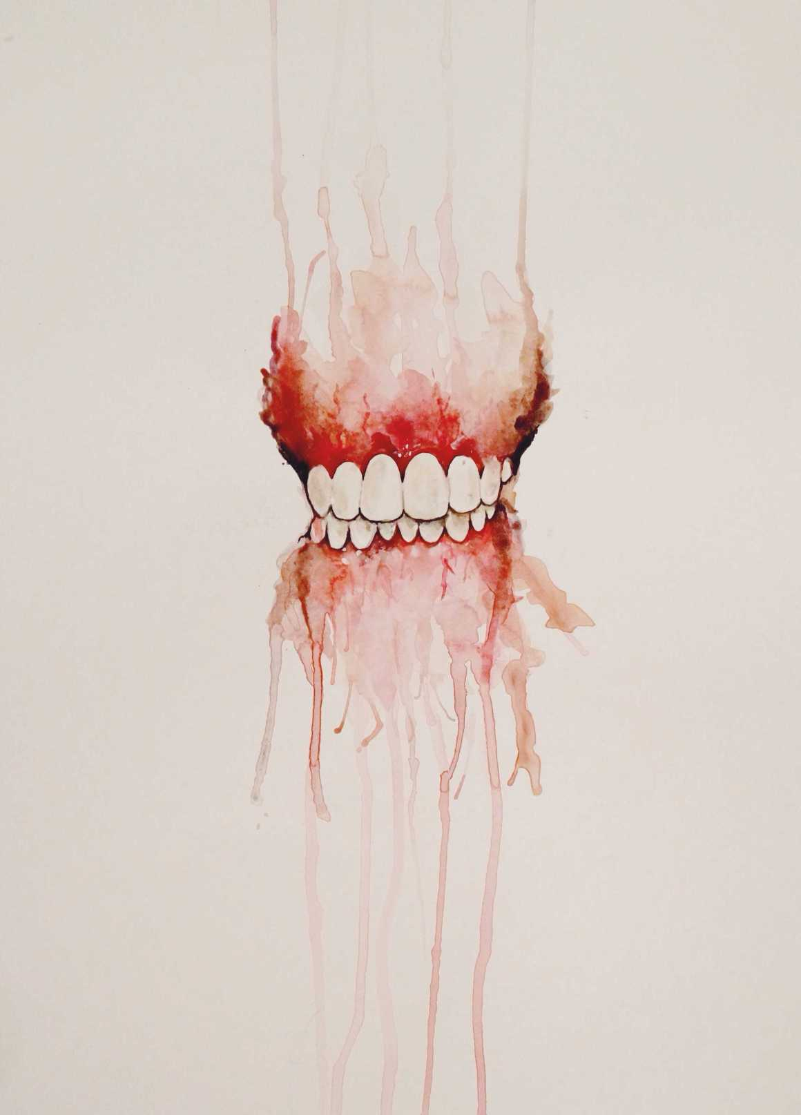 Gums: an illustration