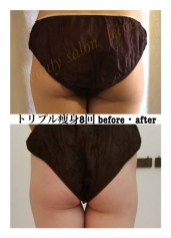 瘦身before・after