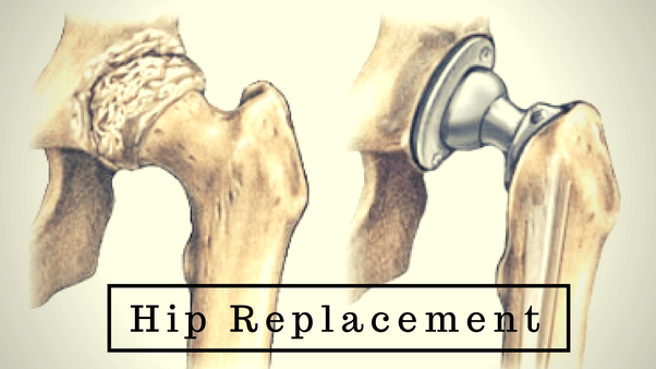 Hip, Knee Replacement Program Gets Gold Seal