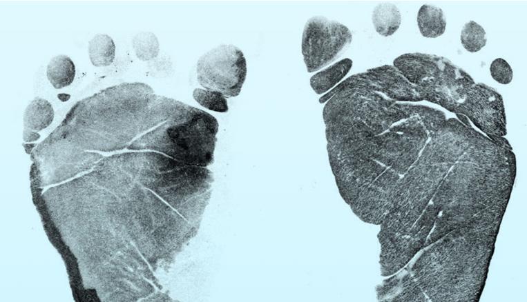 Newborn Footprints Change with Technology
