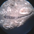Bone - magnified