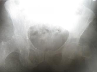Ренгенівські знімки