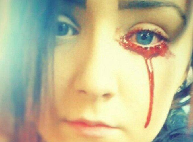 Creer O Reventar El Extraño Caso De La Adolescente Que Llora Sangre
