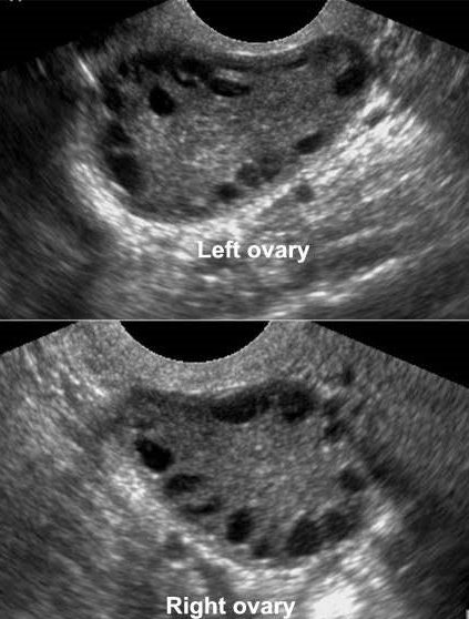 Ultrasound images of PCOS.