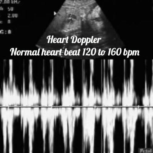 heart doppler seen on ultrasound/ Normal 29-week pregnancy