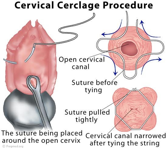 illustration of cerclage for cervical incompetence