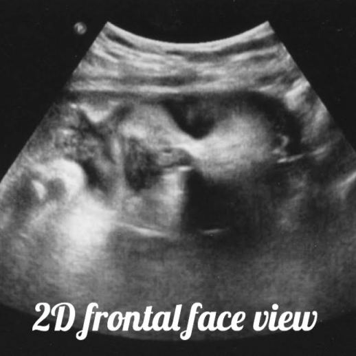 34 week pregnancy and ultrasound