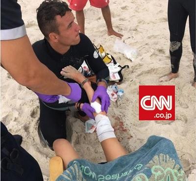 12歳の少女がサメによるものとみられる襲撃によりけがをした