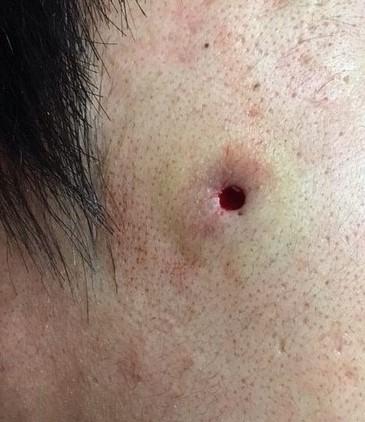 粉瘤 柏 流山でお肌の悩みはうめはら皮ふ科へ